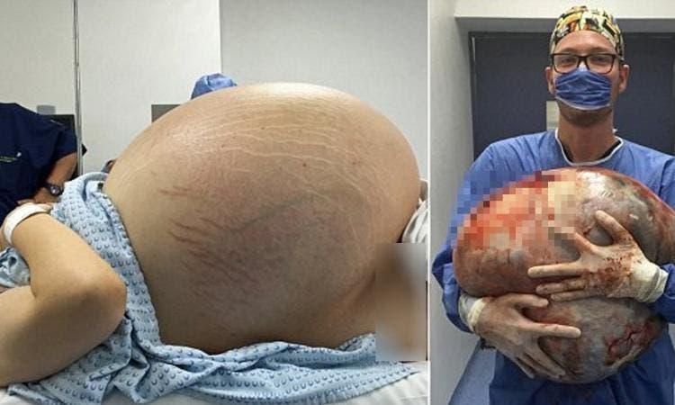 problèmes de peau après l accouchement