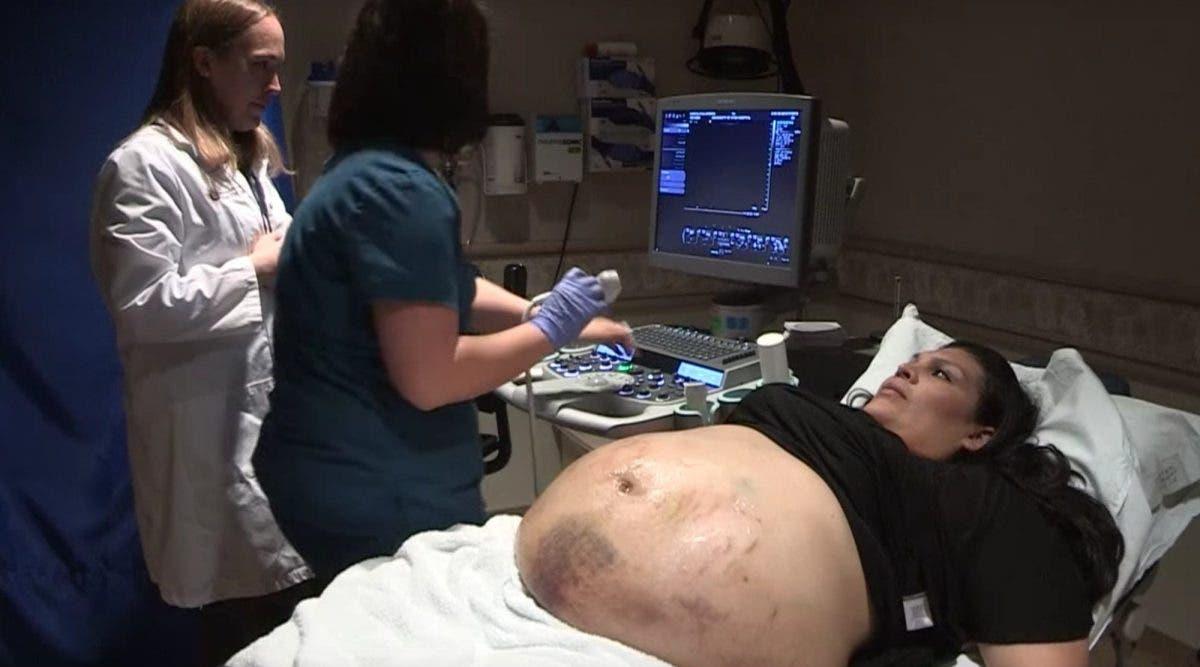 Le ventre d'une femme enceinte est couvert de bleus