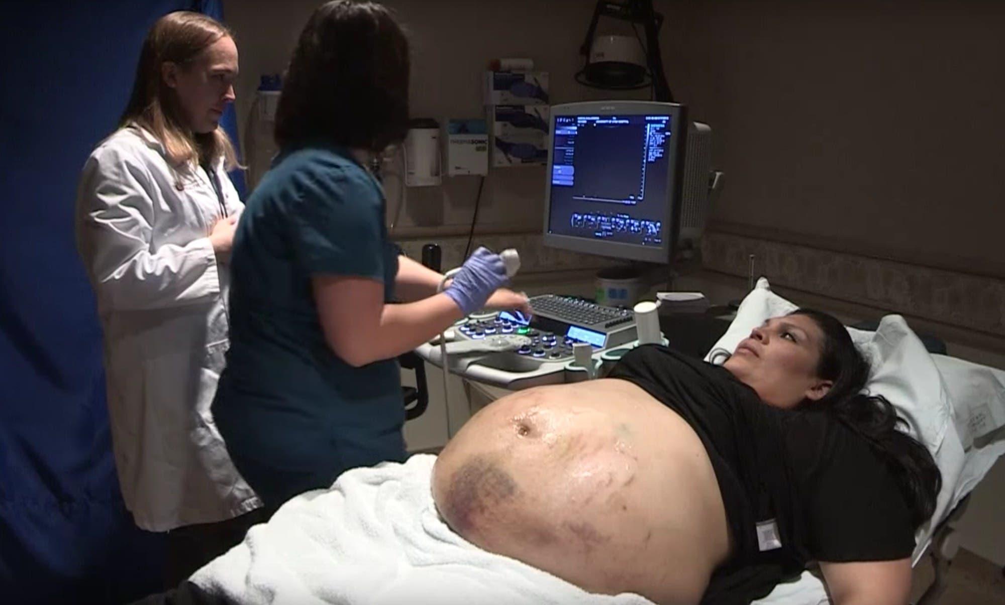 Le ventre d'une femme enceinte est couvert de bleus - l ...