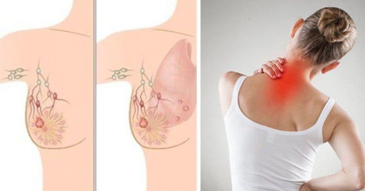 Les 5 symptômes indiquant un cancer du sein que la plupart des femmes néglige