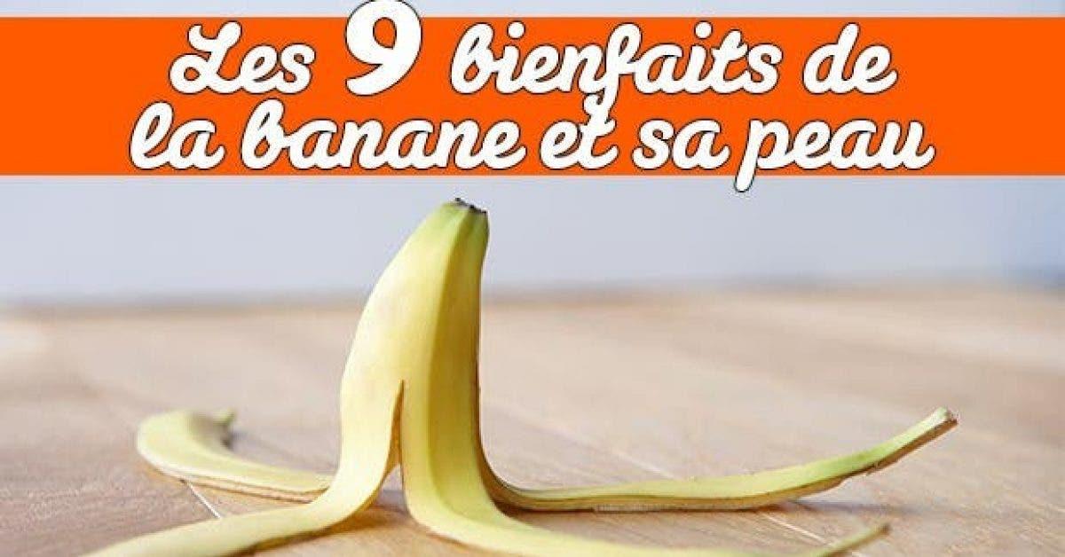 Les 9 bienfaits de la banane peau11