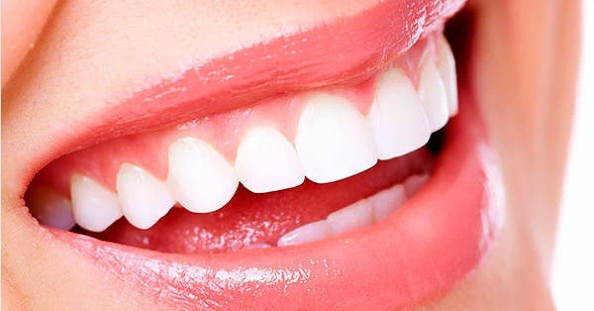 Les aliments qui preservent la sante dentaire et renforcent les dents 1