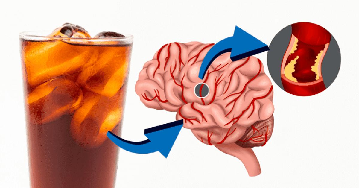 Les boissons light provoquent l'AVC d'après cette nouvelle étude