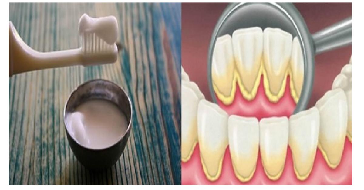 Les dentistes nous cachent ceci