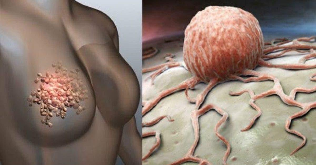 Les femmes doivent arrêter d'ignorer ces 5 signes alarmants du cancer du sein
