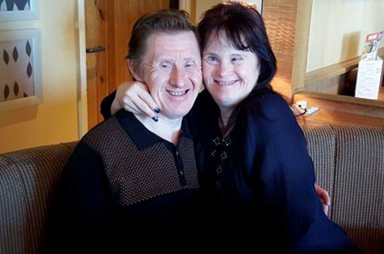 Les gens critiquent ce couple atteint de trisomie 21