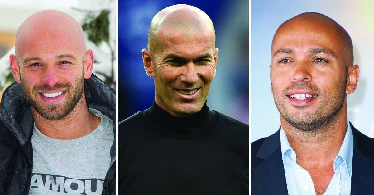 Les hommes chauves