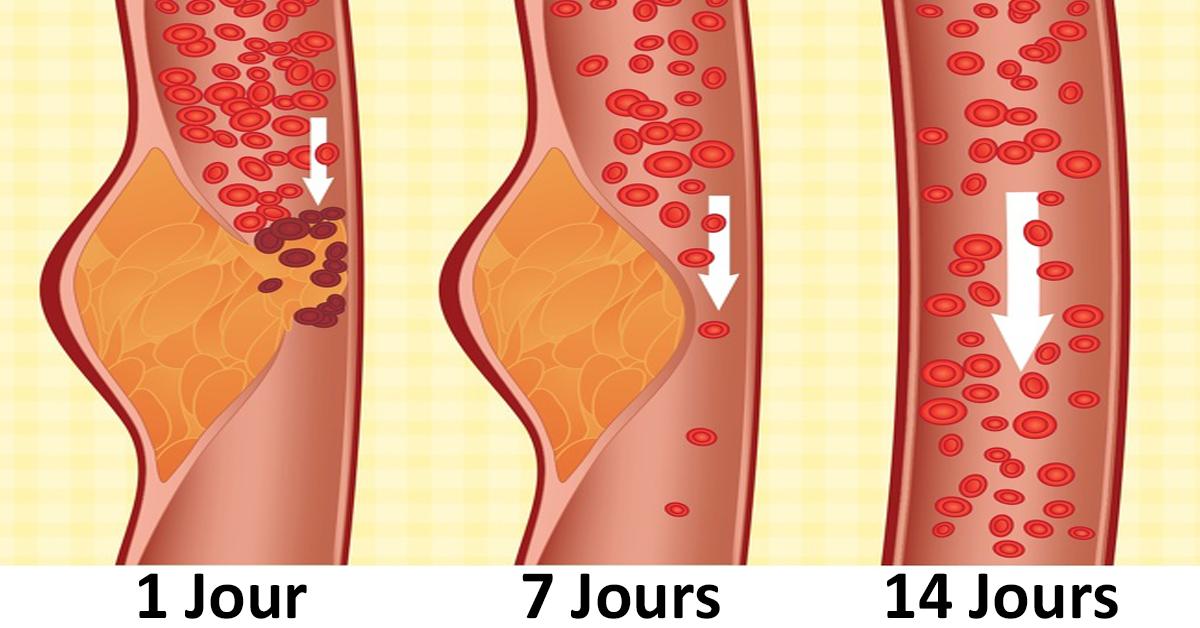 Les médecins affirment que le régime DASH est le meilleur pour votre santé