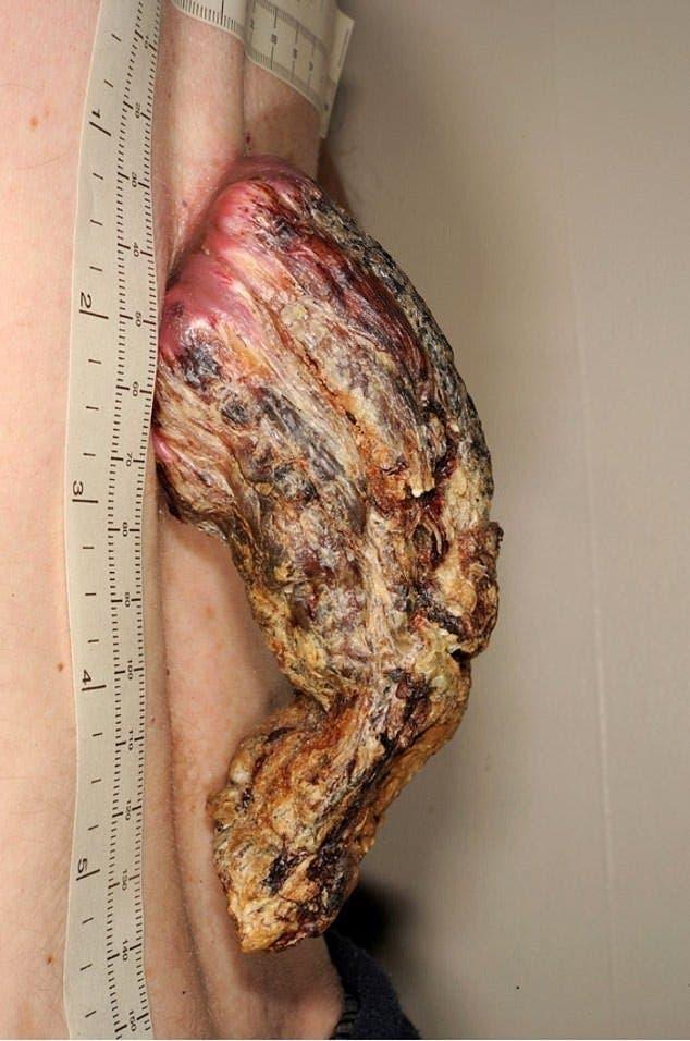 Les médecins découvrent une corne de 14 centimètres sur le dos d'un homme
