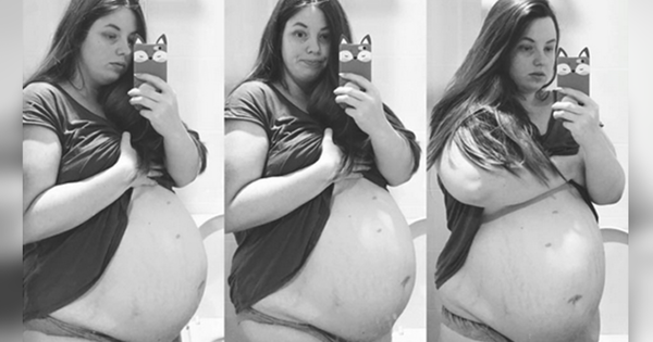 Les médecins demandent à cette mère de sacrifier sa fille pour sauver ses garçons