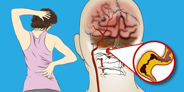 Les médecins demandent aux femmes de faire attention à ces 6 symptômes de l'AVC