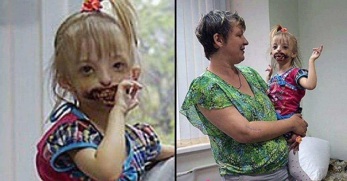 Les médecins demandent aux parents d'abandonner leur enfant. Leur réponse est terrible
