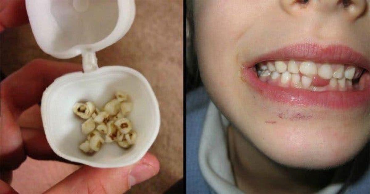 Les médecins demandent aux parents de ne pas jeter les dents de lait des enfants