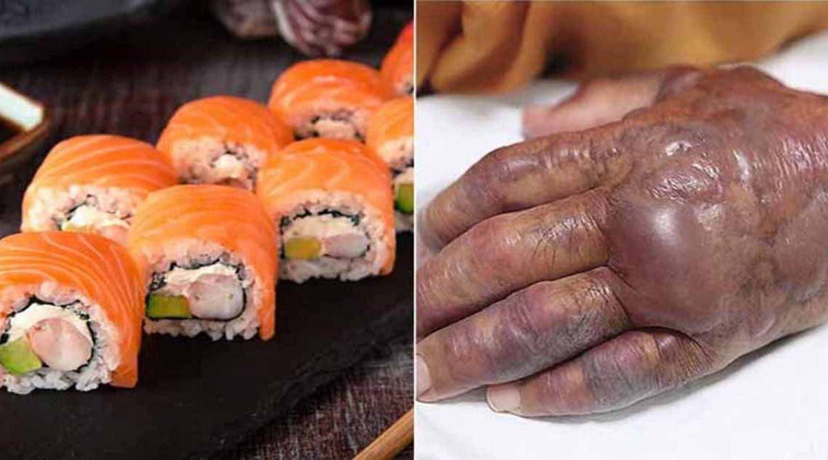 Les médecins ont dû amputer le bras d'un homme après son dîner