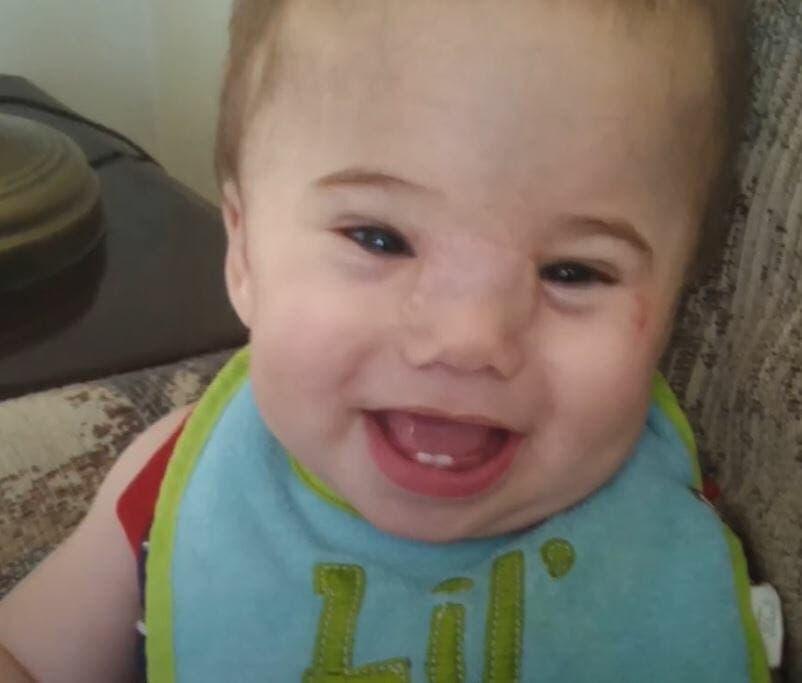 Les médecins ôtent ceci du visage de ce bébé