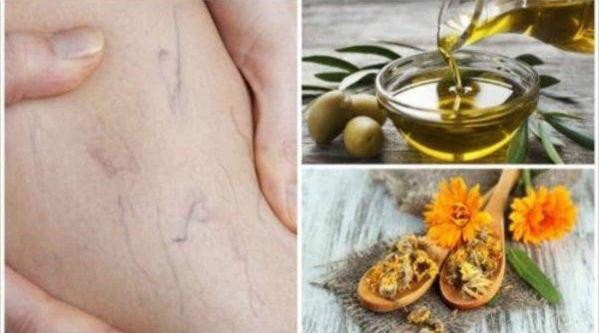 Les médecins recommandent cette astuce à l'huile d'olive pour traiter les varices