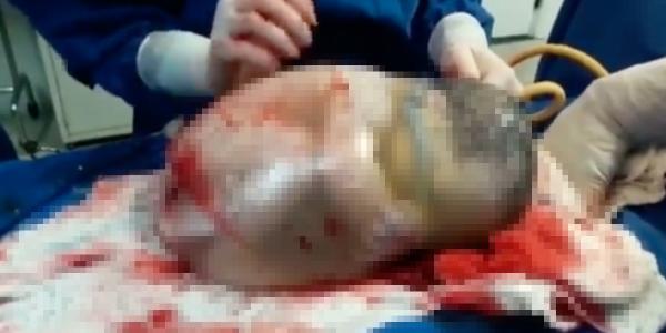 La naissance incroyable d'un bébé dans son sac amniotique (vidéo)