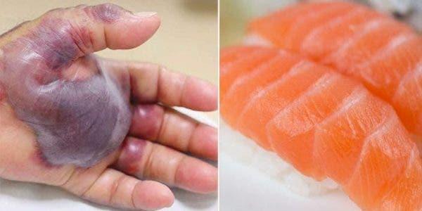 Les médecins sont forcés d'amputer le bras d'un homme après qu'il est mangé des sushis