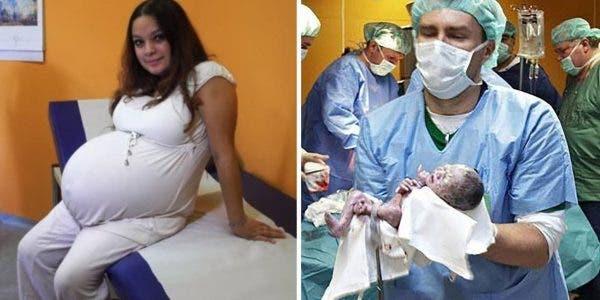 Les médecins sont surpris par la naissance rare et historique d'une maman de 23 ans