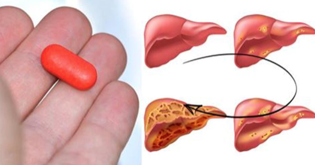 Les scientifiques affirment que ce médicament populaire peut détruire le foie