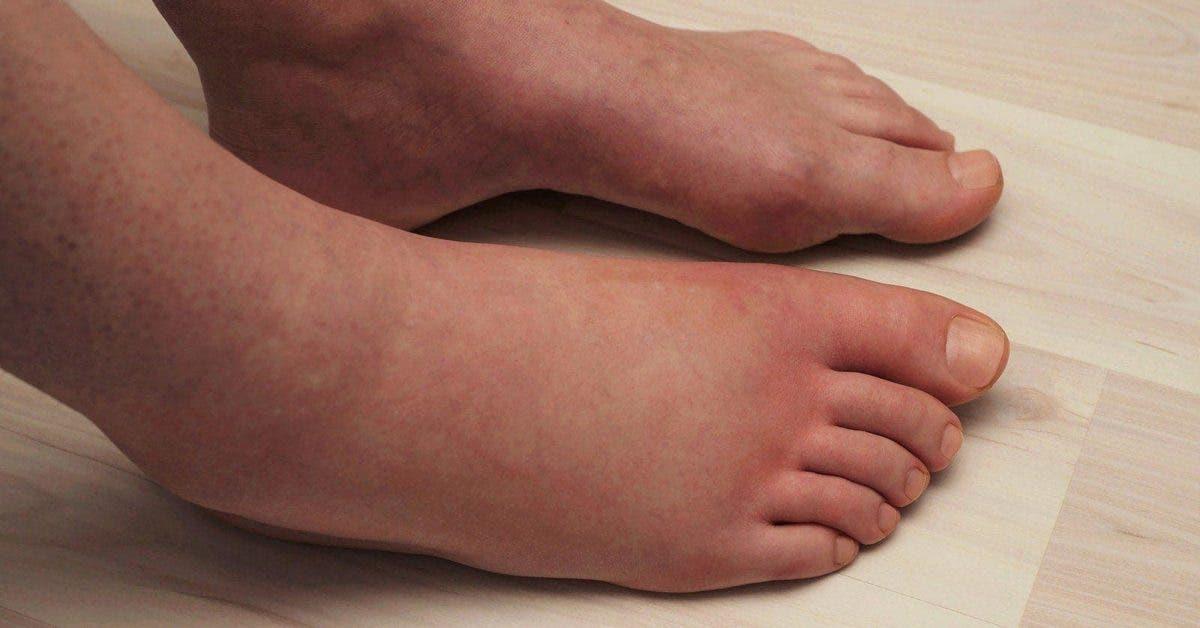 Les scientifiques expliquent 6 choses qui causent des jambes enflées