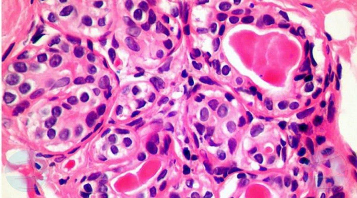 Les scientifiques viennent de découvrir une cellule qui pourrait détruire le cancer