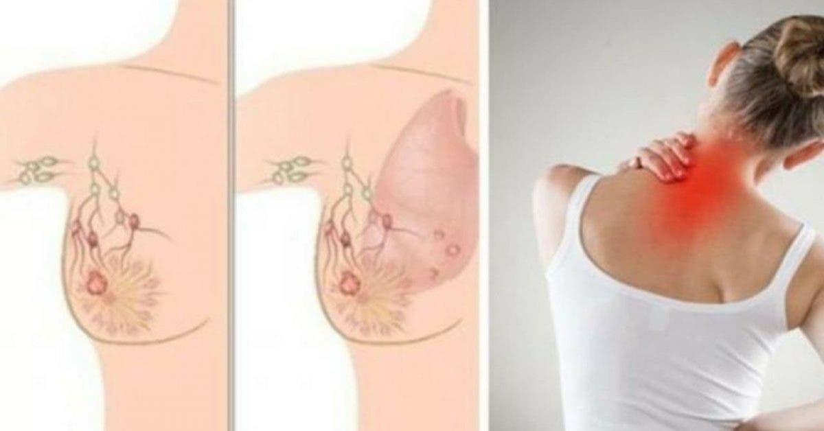 Les signes d'alerte précoce qu'un cancer du sein se développe dans votre corps et que la plupart des femmes ignorent