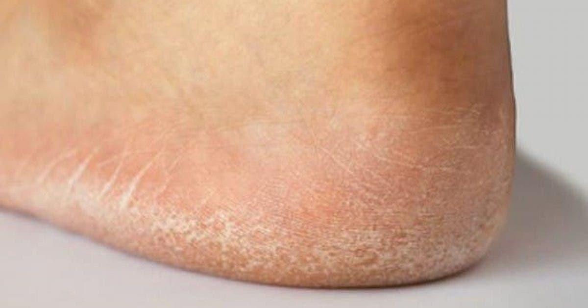 Les signes qui indiquent que vous avez un problème de thyroïde et les solutions pour vous en débarrasser 1