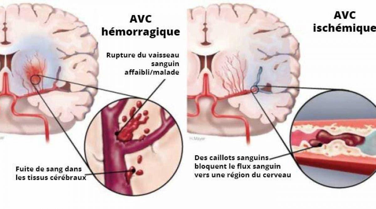 Les symptômes de l'accident vasculaire cérébral chez les femmes que vous ne savez pas