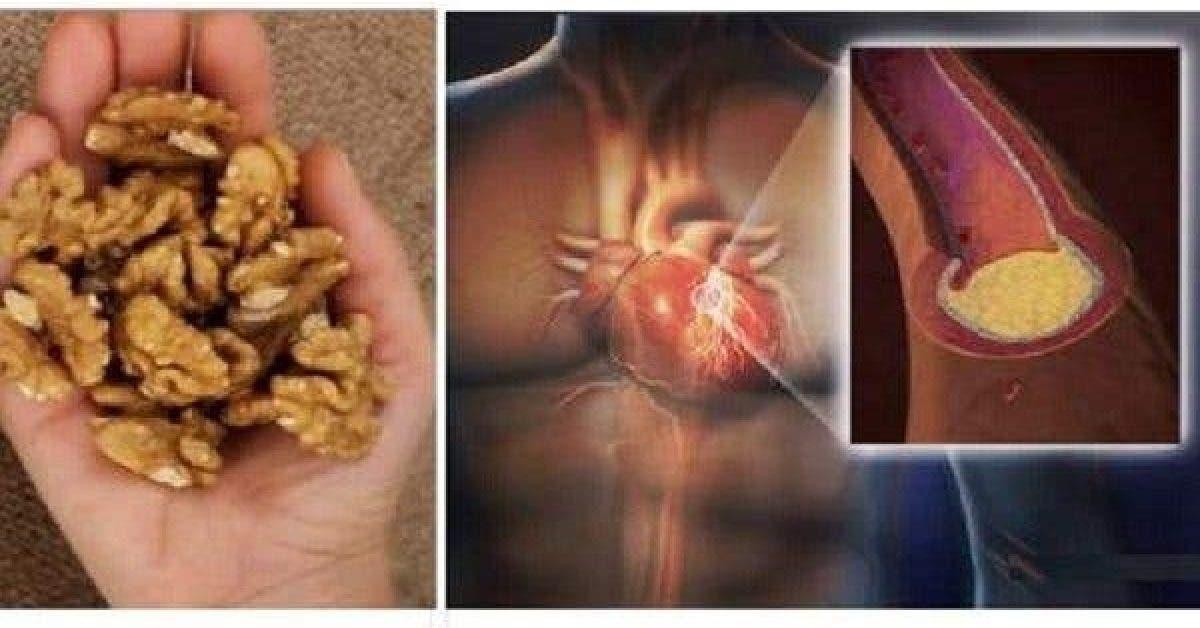 Mangez 5 noix et attendez 4 heures