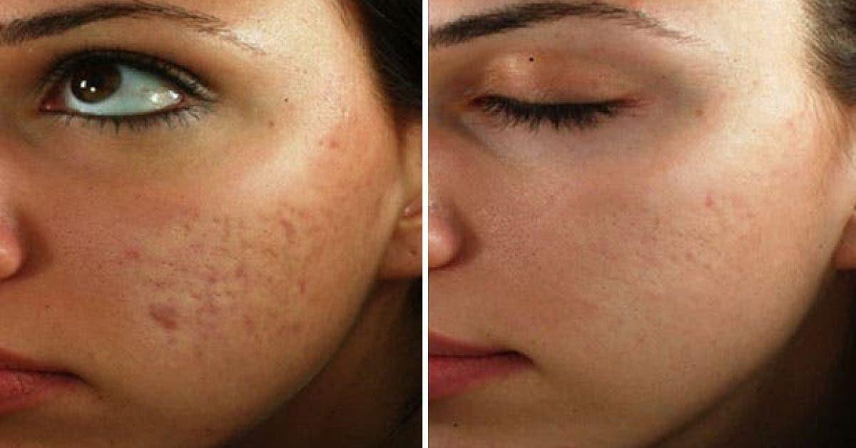 masque maison cicatrice acné