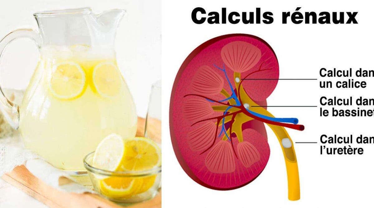utiliser du citron pour combattre les calculs rénaux