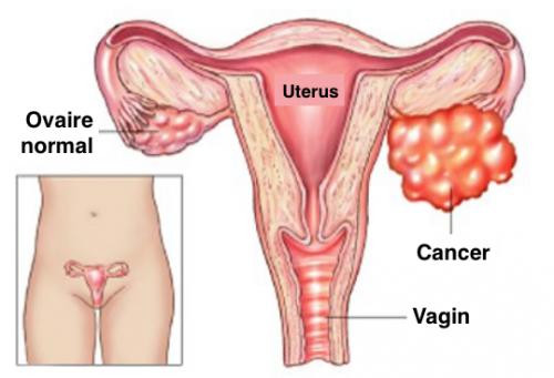 Ne prenez pas à la légère ces symptômes du cancer de l'ovaire
