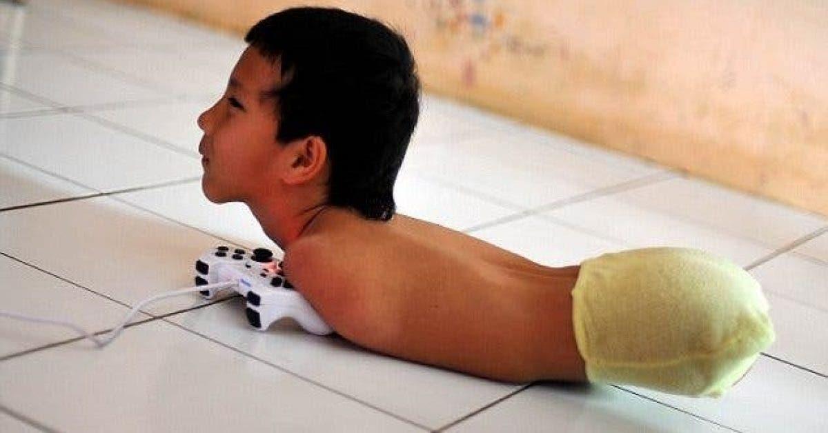 Né sans bras, sans jambes, ce que ce petit garçon fait dépasse notre imagination