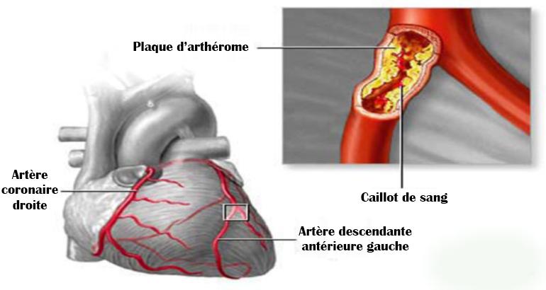 Nettoyez vos artères