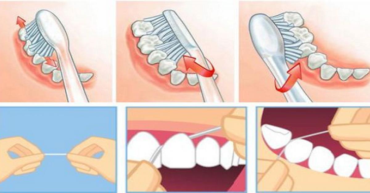Des astuces puissantes pour éliminer le tartre, la plaque dentaire et vous débarrasser de la mauvaise haleine