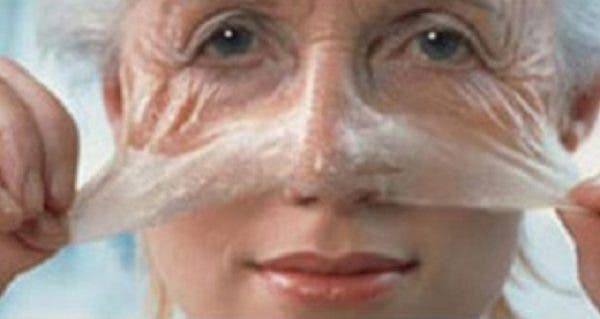 how to get rid of wrinkles from you hand