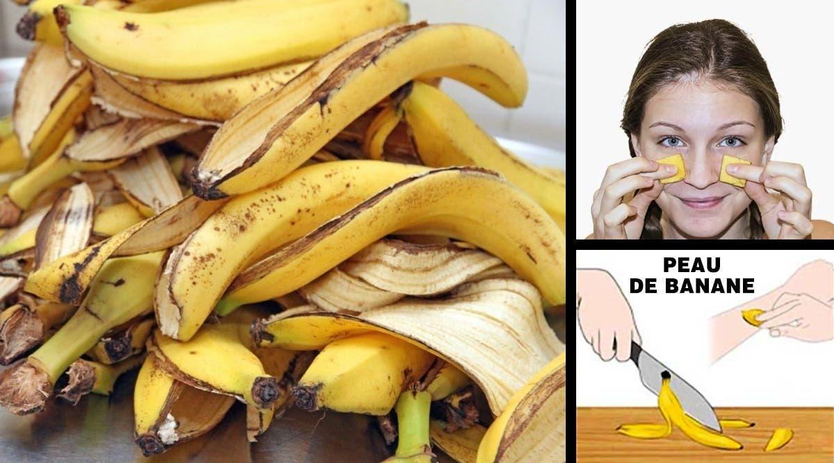 la peau de banane