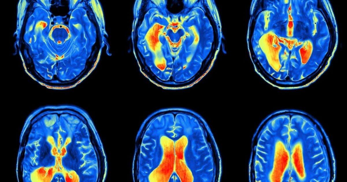 Passer son temps à se plaindre rend le cerveau anxieux et déprimé