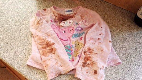Personne ne comprend pourquoi sa fille a des inflammations sur son visage