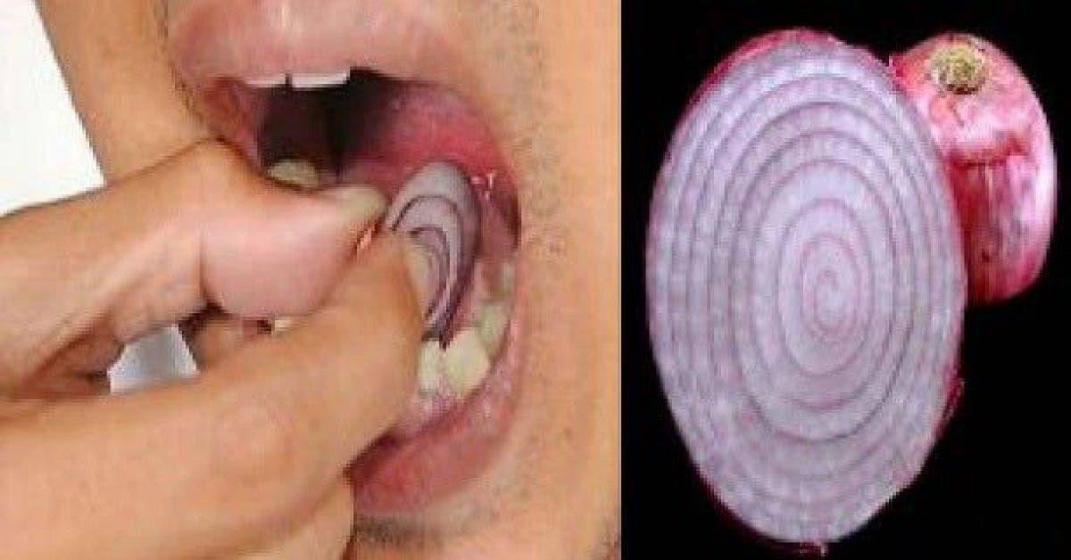 Placez une tranche d'oignon sur votre dent pendant 15 minutes