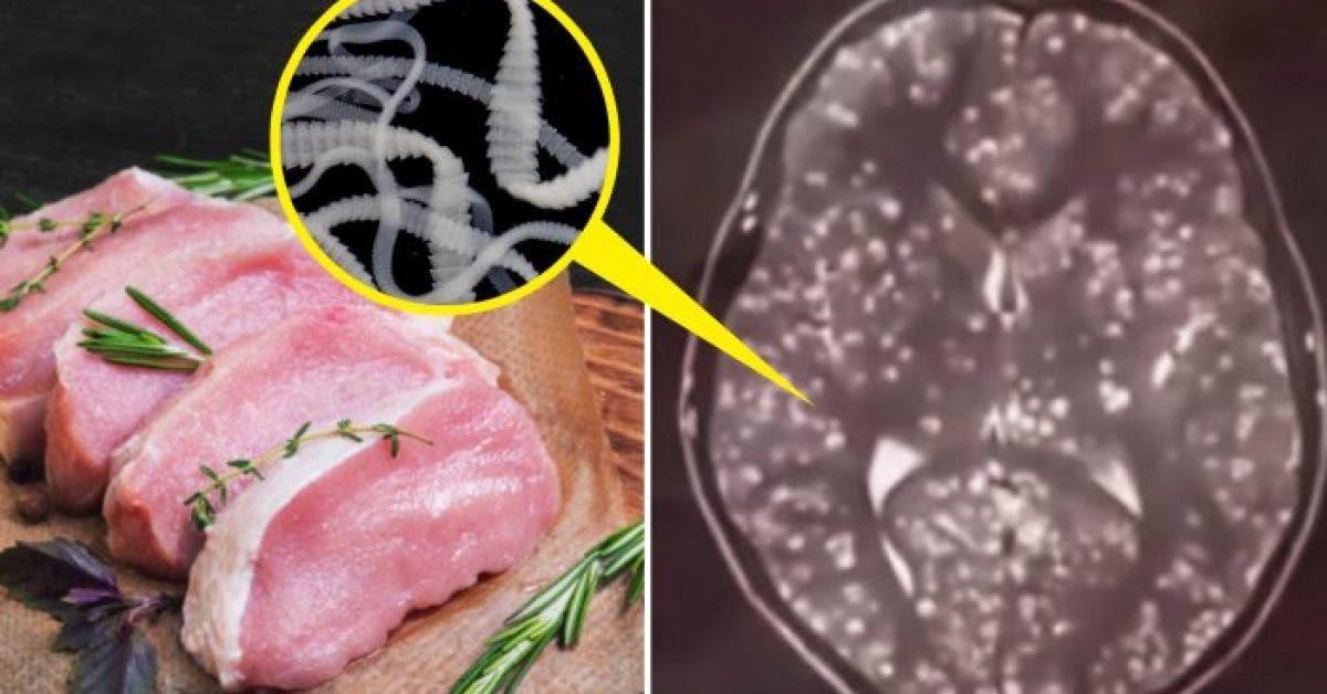 dezvoltarea rinitei intestinele de detoxifiere