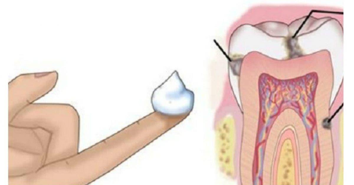 Pourquoi les dentistes ne veulent pas vous dire ceci ? Une manière facile pour ne plus avoir de caries