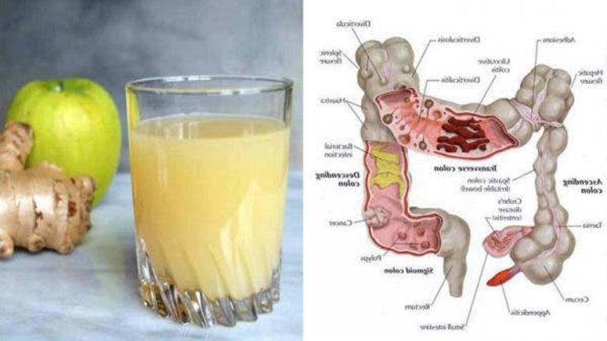 toxine jus de pomme schistosomiasis klachten