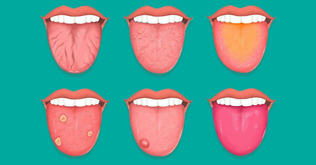 Que dit la couleur de votre langue à propos de votre santé ?