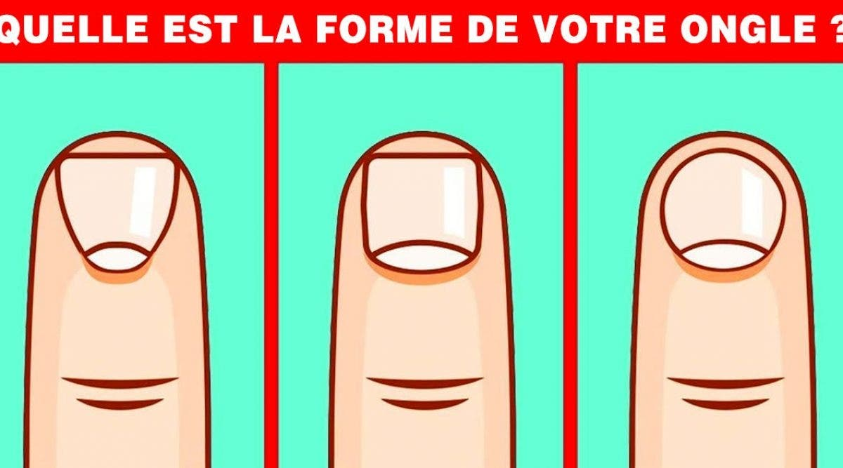 forme ongle