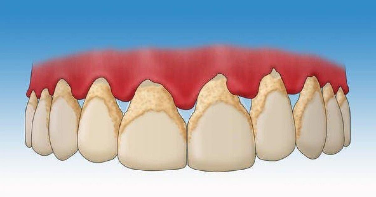 Recette Enlevez le tartre de vos dents grace a ce melange naturel 1