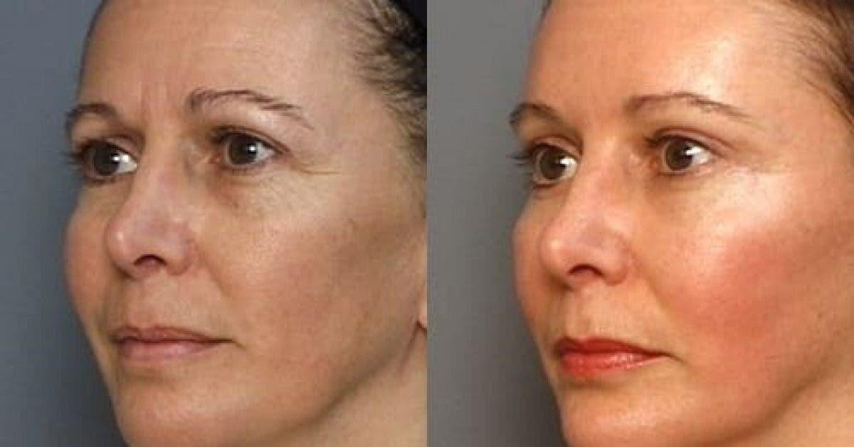Retrouvez une peau ferme et lisse en 5 minutes avec ce masque liftant antirides 1