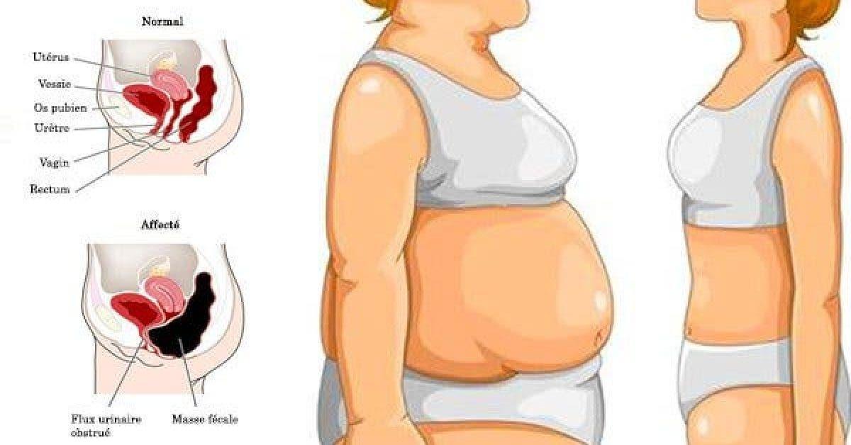 Se débarrasser de la graisse abdominale en 5 étapes : des habitudes plus saines pour retrouver un ventre plat.