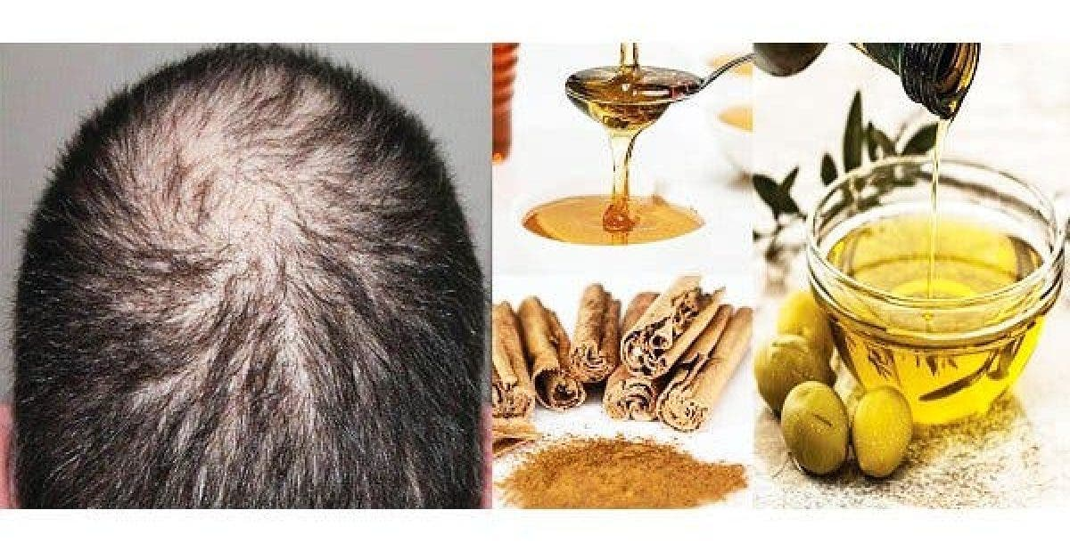Say Goodbye To The Baldness Grow Back Your Hair Naturally Faster and Stronger 1 1